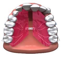 orthodontics2