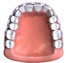 orthodontics5