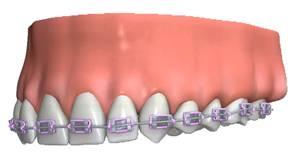 orthodontics6