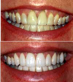 teeth-whitening